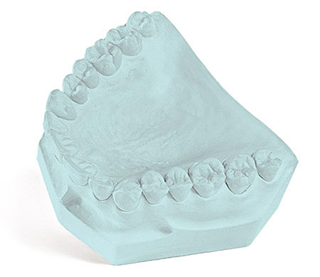 Garreco Labstone Blue Dental Model