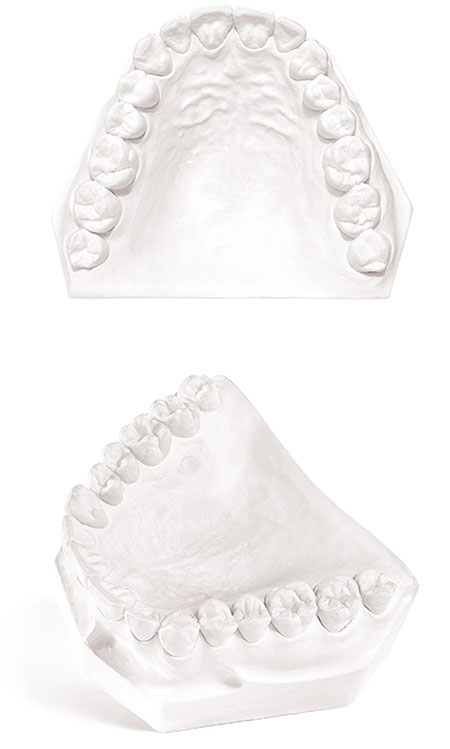 Fastone Dental Gypsum